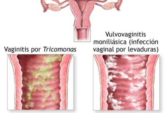 tricomoniasis dolor pélvico